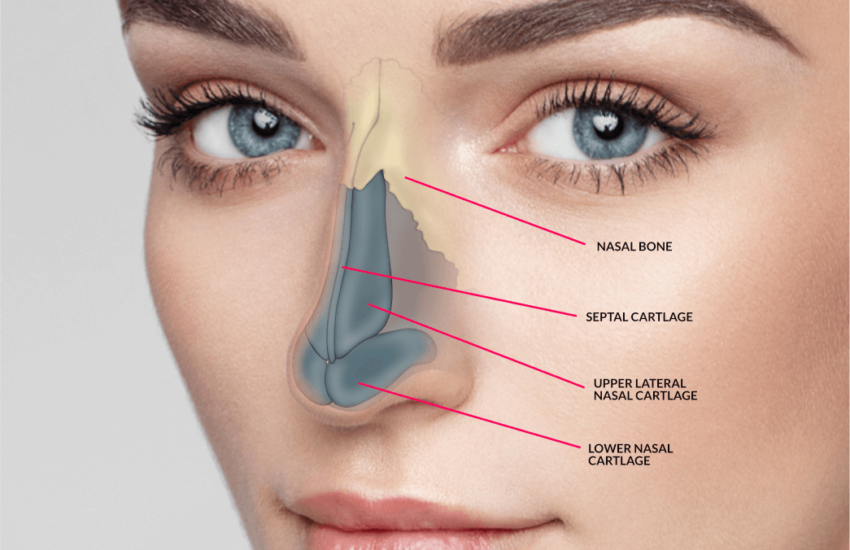 Rhinoplasty in Chennai